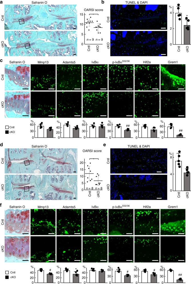 Regulation of osteoarthritis development by gremlin-1. a Safranin O staining and OARSI scores of mouse knee joints of Grem1 fl/fl (Cntl) and Col2a1-Cre ERT2 ;Grem1 fl/fl (cKO) mice 8 weeks after surgery. Tamoxifen induction was performed at 7 weeks. Both experimental groups consist of n = 9 biologically independent animals. Inset boxes indicate regions of immunofluorescence in ( c ). Scale bars, 100 µm. b TUNEL staining and rate of TUNEL-positive cells in mouse knee joints of Cntl and cKO mice 8 weeks after surgery. Nuclei were stained with DAPI (blue). Scale bars, 100 µm. n = 5 biologically independent experiments. c Safranin O staining and immunofluorescence of Mmp13, Adamts5, IκBα, phosphorylated IκBα (dual Ser32/36), HIF-2α, and gremlin-1 proteins in mouse knee joints of Cntl and cKO mice 8 weeks after surgery. Scale bars, 50 µm. The percentage of positive cells in the immunofluorescence is shown below. n = 5 biologically independent experiments. d Safranin O staining and OARSI scores of mouse knee joints of Cntl and cKO mice at 18 months of age. Tamoxifen induction was performed for 5 days at 8 weeks, 6 months, and 12 months. Both experimental groups consist of n = 8 biologically independent animals. Inset boxes indicate regions of immunofluorescence in ( f ). Scale bars, 100 µm. e TUNEL staining and rate of TUNEL-positive cells in mouse knee joints of Cntl and cKO mice at 18 months of age. Nuclei were stained with DAPI (blue). Scale bars, 100 µm. n = 5 biologically independent experiments. ( f ) Safranin O staining and immunofluorescence of Mmp13, Adamts5, IκBα, phosphorylated IκBα (dual Ser32/36), HIF-2α, and gremlin-1 proteins in mouse knee joints of Cntl and cKO mice at 18 months of age. Scale bars, 50 µm. The percentage of positive cells in the immunofluorescence is shown below. n = 5 biologically independent experiments. All data are expressed as mean ± SD. * P