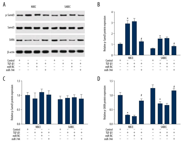 Enrichment of miR-744 reduced phosphorylation of Smad3 and increased the production of SARA in epithelial cells from normal or severe asthma subject. ( A ) Western blot analysis was conducted to detected total and phosphorylated Smad3 or SARA expression in NBECs and SABECs with <t>TGF-β1</t> overexpression vector or (and) miR-744 mimic or miR-NC transfection. ( B–D ) Relative densitometry analyses of proteins were conducted using Image Lab software. * P