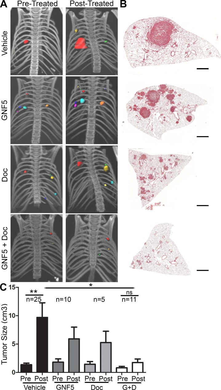 """Inhibition of ABL kinases impairs Kras G12D/+ ; p53 −/− driven lung tumors Treatments began 8 weeks after Adeno-Cre infection of LSL-Kras G12D/+ ; p53 fl/fl mice. A. 3D-reconstructions of μ-CT scans of mice before and after 14 days of treatment with vehicle, GNF5 (100 mg/kg b.i.d .), docetaxel (10 mg/kg, twice weekly), or GNF5 (100 mg/kg) + docetaxel (10 mg/kg, twice weekly). B. H E sections of lungs from mice in each treatment group 10 weeks after adenoviral induction. Scale bar = 2,000 μm. C. Quantification of total tumor volume in bilateral lungs evaluated by μ-CT scans taken before (8 weeks) and after (10 weeks) treatment with vehicle, GNF5 alone, docetaxel alone, or combination therapy shows that combination treatment significantly impairs tumor growth in mice compared to vehicle treated mice. Graphs depict means and S.E.M. of """"n"""" mice, where """"n"""" represents each individual animal used."""
