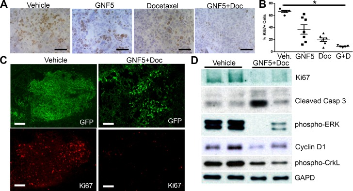Inhibition of ABL kinases in the presence of docetaxel decreases cell proliferation and increases cell death in Kras G12D/+ ; p53 −/− driven lung tumors Treatments began 10 weeks after Adeno-Cre infection of Rosa26-fGFP; LSL-Kras G12D/+ ; p53 fl/fl mice. Mouse lungs were harvested at 12 weeks after Adeno-Cre infection. A. IHC for Ki67+ cells in sections of mouse lungs from mice treated with vehicle control, docetaxel, GNF5, or combination (docetaxel+GNF5) treatment showing a decrease in Ki67 staining, particularly in the combination therapy group. Scale bar = 50 μm. B. Quantification of IHC staining for Ki67 ( n = 5-7 tumors per group). C. Immunofluorescence staining for Ki67 showing a decrease in the percentage of Ki67+ (red) tumor cells (labeled with farnesylated GFP, green) in mice treated with combination therapy of GNF5 and docetaxel compared to vehicle treated mice. Scale bar = 150 μm. D. Immunoblotting of lysates showed a decrease in Ki67 expression and increase in cleaved caspase 3 expression in mice given combination therapy compared to control mice and a corresponding decrease in pERK and cyclin D1, which are downstream targets of oncogenic Kras . Phospho-CrkL is a marker for ABL kinase activity while GAPD is a loading control. Graphs depict means and S.E.M.