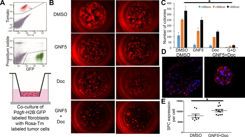 Inhibition of ABL kinases sensitizes primary Kras G12D/+ derived organoid cultures to treatment with docetaxel in 3D tumor sphere assays A. Model: SPC (Sftpc)-CreERT2; KRAS LSL-G12D ; Rosa26-tdTomato mice were given tamoxifen to induce tumor formation. Tomato+ cells were then isolated from mice after tumor formation and grown in Matrigel in transwell inserts in the presence of primary mouse fibroblasts (derived from PDGFRα-H2B: GFP mice) to induce tumor organoid formation. B and C. Organoids were treated with vehicle (DMSO), GNF5, docetaxel (DOC), or combination treatment (GNF5 + DOC) for 2 weeks and assessed for organoid size 2 weeks after treatment (B); quantification revealed a significant reduction in organoid size in response to combination treatment compared to vehicle, GNF5, or docetaxel alone (C). Graphs depict means and S.E.M. D. - E. Immunofluorescence staining of organoids treated with GNF5 and docetaxel show increased expression of the Type II cell marker, SPC, compared to vehicle control treated mice. Quantification is provided in (E). Scale bar = 10 μm. Graphs depict means and S.E.M.