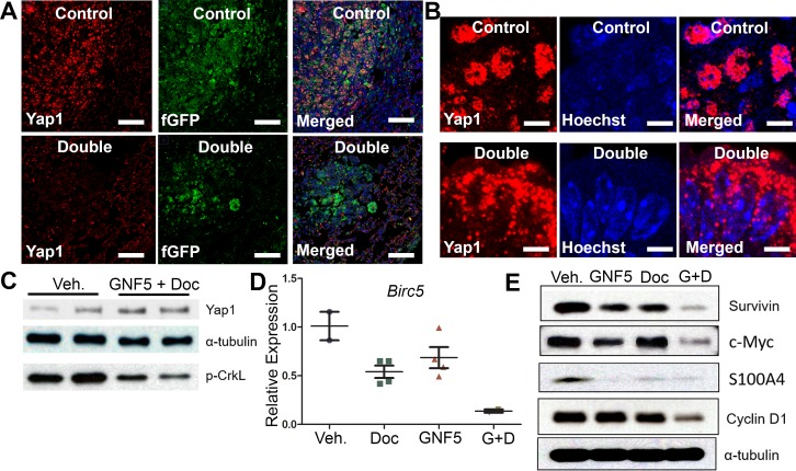 Combination treatment of GNF5 and docetaxel induces cytoplasmic localization of Yap1 and decreases expression of downstream transcription targets of Yap1 compared to vehicle control treated lung adenocarcinomas GFP+ cells were isolated from KRAS G12D/+ ; p53 −/− ; Rosa26-fGFP mice two weeks after treatment with vehicle, docetaxel, GNF5, or combination treatment and 12 weeks after induction of tumors with adenovirus. A. Immunofluorescence staining for Yap1 shows a decrease in Yap1 nuclear localization in mice treated with GNF5 and docetaxel compared to vehicle control treated mice. Scale = 75 μm. B. Higher magnification images are provided to show sub-cellular localization of Yap1 in control and combination treatment mice. Scale = 7.5 μm. C. Western blot analysis showed no significant difference in total Yap1 protein expression in double treated mice compared to vehicle treated control mice. Phospho-CrkL expression is a marker of ABL kinase activity. D. RT-qPCR analysis showed a decrease in mRNA transcript expression of the downstream Yap1 target, Birc5 , which encodes the protein survivin, in mice treated with both GNF5 and docetaxel compared to vehicle control treated mice or mice treated with GNF5 or docetaxel alone ( n = 3-4 mice per group, each RT-qPCR assay performed in triplicate). E. Western blot analysis showed a decrease in protein expression of downstream transcriptional targets of Yap1, including survivin, c-Myc, S100A4, and cyclin D1. Graphs depict means and S.E.M.