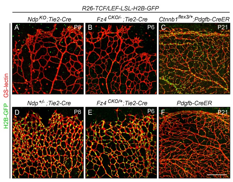 Assessing the specificity and sensitivity of the R26-8xTCF/LEF-LSL-H2B-GFP canonical Wnt reporter in the retinal vasculature by assessing its response to decreased or increased beta-catenin signaling. Flatmounted retinas with EC-specific Cre recombination were stained with GS lectin to visualize ECs and macrophages, and immunostained with anti-myc antibodies for H2B-GFP-6xmyc. In developing retinas [P6-P8]; panels ( A ), ( B ), ( D ), and ( E ), the LSL cassette has been removed in all ECs using Tie2-Cre . ECs in R26-8xTCF/LEF-LSL-H2B-GFP;Ndp KO ;Tie2-Cre ( A ) and R26-8xTCF/LEF-LSL-H2B-GFP;Fz4 CKO/- ;Tie2-Cre ( B ) retinas have little or no beta-catenin signaling and show a nearly complete loss of expression of the nuclear-localized H2B-GFP reporter. [ Ndp is X-linked, and ' Ndp KO ' refers to both male Ndp -/Y males and Ndp -/- females.] Littermate controls were heterozygous for Ndp or Fz4 ( D, E ) and show reporter expression at approximately WT levels. In mature retinas [P21]; panels ( C ) and ( F ), the LSL cassette was removed in nearly all ECs using Pdgfb-CreER and 200 ug 4HT at P4. ECs in the R26-8xTCF/LEF-LSL-H2B-GFP;Ctnnb1 flex3/+ ;Pdgfb-CreER retina ( C ) have high levels of beta-catenin signaling and show a higher level of accumulation of the nuclear-localized H2B-GFP reporter compared to the 8xTCF/LEF-LSL-H2B-GFP;Pdgfb-CreER control retina ( F ) that lacks Ctnnb1 flex3 . Paired experimental and control retinas were processed in parallel and imaged with identical microscope settings, and the resulting images were processed identically. Scale bar, 200 μm.