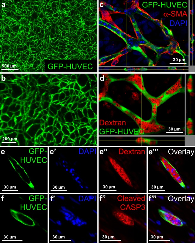 """Substitution of Matrigel/rCOL by hCOL from fibroblasts leads to lumenized EC network formation with involvement of apoptosis. ( a , b ) 3D hydrogel constructs containing GFP positive HUVECs and hASCs and hCOL after 14 days of cultivation in SFM. ( c ) Virtual stacks of GFP-HUVECs co-cultured with hASCs in hCOL for 14 days and stained for α-SMA. Nuclei were counterstained with DAPI. α-SMA positive cells are in physical contact with GFP-HUVECs. ( d ) Virtual stacks of HUVECs co-cultured with hASCs and incubated with Texas red-labeled Dextran. ( e – e """"') Images of cryo-sections from constructs containing GFP-HUVECs, hASCs and hCOL. Constructs were cultivated for 14 days in SFM and incubated with Texas red-labeled dextran. Cryo-sections were stained with DAPI. ( e ) GFP-HUVEC, ( e ') DAPI, ( e """") Texas red-labeled dextran, ( e """"') Superimposed image of ( e , e ', e """"). Intense DAPI staining of fragmented DNA is localized within the lumen filled with Texas red-labeled dextran. ( f – f """"') Images of cryo-sections from constructs containing GFP-HUVECs, hASCs and hCOL. Constructs were cultivated for 14 days in SFM. Cryo-sections were stained for cleaved caspase 3 and DAPI. ( f ) GFP-HUVEC, ( f ') DAPI, ( f """") cleaved caspase 3 <t>(CASP3),</t> ( f """"') superimposed image of ( f , f ', f """"). Intense DAPI staining of fragmented DNA is localized within the lumen and co-localizes with the signal for cleaved caspase 3. Scale bar: ( a ) 500 µm; ( b ) 200 µm; ( c – f """"') 30 µm."""