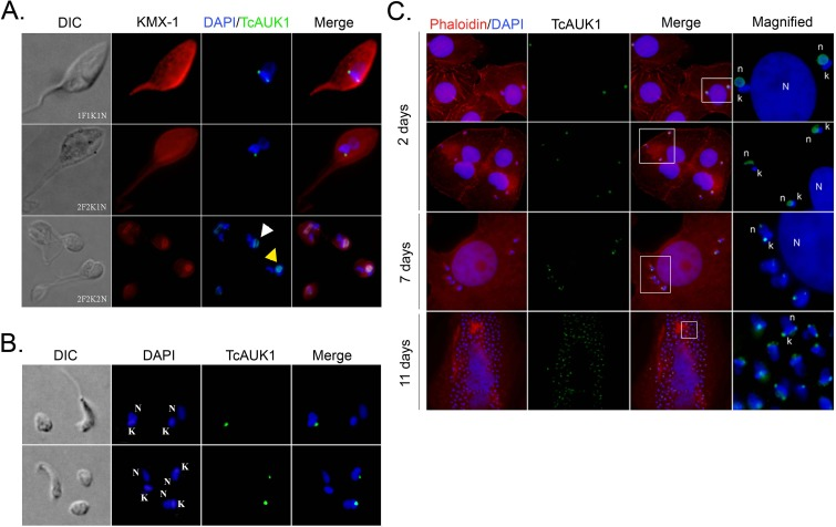 TcAUK1 localization in the different forms of T . cruzi . (A) Epimastigote forms at different points of the cell cycle (1F1K1N, 2F2K1N, 2F2K2N) were co-immunostained with rabbit antiserum to TcAUK1 and mouse KMX-1 for TcAUK1 and mitotic spindle, respectively. Yellow arrowhead indicates cells where the nuclei have not segregated yet, and white arrowhead points cells where both nuclei are segregating and (B) Amastigote and Trypomastigote forms isolated from culture supernatants were immunostained with rabbit antiserum to TcAUK1. (C) Infected Vero cells were stained with rhodamine-conjugated phalloidin for actin filaments and intracellular parasites were immunostained with rabbit antiserum to TcAUK1. In all cases, to dye DNA structures–nucleus (n or N) and kinetoplast (k)–cells were counterstained with DAPI. White squares point the magnified regions.