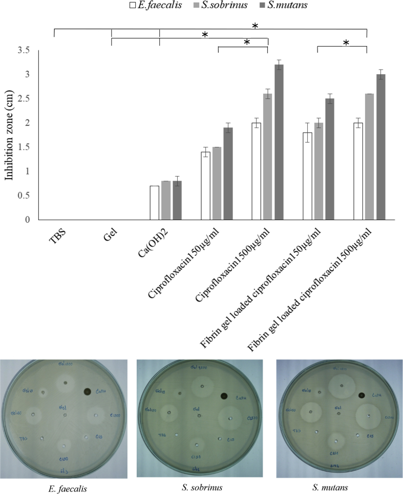 The antibacterial properties of ciprofloxacin delivered by a fibrin hydrogel compared to ciprofloxacin solution. The inhibition zone of 150 and 1500 μg/ml ciprofloxacin delivered by fibrin hydrogel were tested against Streptococcus mutans , Enterococcus faecalis , and Streptococcus sobrinus . Likewise, the standard ciprofloxacin solutions prepared in TBS at the same concentration were verified in parallel. Only TBS, fibrin hydrogel, and calcium hydroxide were loaded into the agar as the control. TBS: tris-buffered saline solution, * p-value