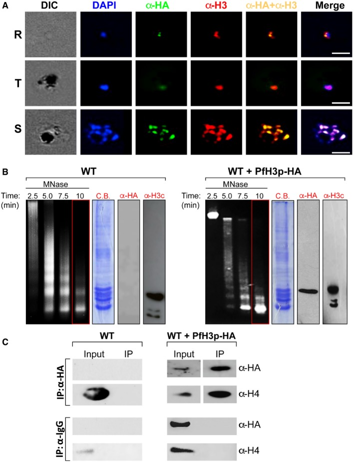 Ectopically expressed histone H3p localizes to the nucleus during parasite asexual development and incorporates into nucleosomes Indirect immunofluorescence assays were performed to determine the localization of ectopically expressed PfH3p‐HA in ring (R), trophozoite (T), and schizont (S) stages of Plasmodium falciparum asexual growth. PfH3p‐HA was detected using anti‐HA antibodies (green) and endogenous histone H3 with anti‐histone H3 N‐terminal antibodies (red). DAPI (blue) was used to stain the nucleus. Scale bar = 5 μm. Nuclei isolated from wild‐type (WT) or PfH3p‐HA‐expressing (WT + PfH3p‐HA) schizont‐stage parasites were treated with 4 U/ml of micrococcal nuclease (MNase) for the indicated amounts of time, the DNA purified and migrated on a 2% agarose gel, and stained with ethidium bromide. Mononucleosomes purified after 10 min of MNase treatment were separated using denaturing polyacrylamide gel electrophoresis and either stained with Coomassie Brilliant Blue (C.B.) or visualized by immunoblotting with anti‐HA (α‐HA) or anti‐C‐terminal histone H3 (α‐H3c) antibodies. Co‐immunoprecipitation (IP) experiments of purified mononucleosomes obtained from wild‐type (WT) or transfected (WT + PfH3p‐HA) schizont‐stage parasites were performed with either anti‐HA antibodies or mouse IgG. Immunoprecipitated products (right panel) were analyzed by immunoblotting using anti‐HA or anti‐histone H4 antibodies. Source data are available online for this figure.