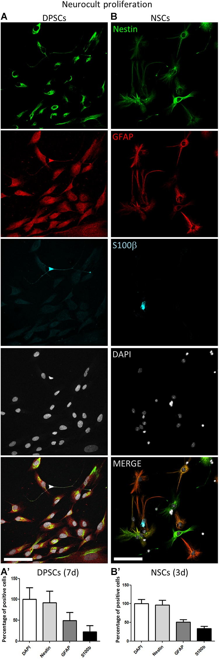 Human DPSCs grown in Neurocult proliferation share neural stem/progenitor markers with murine NSCs. (A,A') Human DPSCs were allowed to grow for 7 days in laminin-coated wells in the presence of Neurocult proliferation media are <t>Nestin</t> positive and also express astroglial markers <t>GFAP</t> and S100ß ( n = 230). (B,B') Murine NSCs grown for 3 days (to avoid confluency) in the same culture conditions also express these astroglial markers in similar proportion ( n = 242). Mean ± SEM of three independent experiments. Scale bar 75 μm.