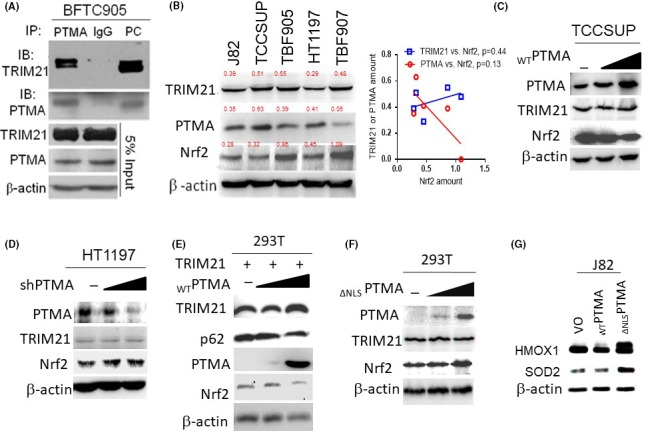 PTMA binds and orchestrates with TRIM 21 to regulate Nrf2 expression through <t>p62/Keap1</t> signaling. A, Immunoprecipitation study for the interaction between endogenous TRIM 21 and PTMA . Total protein lysate from BFTC 905 cells was immunoprecipitated either with PTMA or IgG (as a control), then immunoblotted with TRIM 21. B, Western blotting for TRIM 21, PTMA , and Nrf2 in several bladder cancer cells. Numeric in red indicates the ratio of protein of interest‐to‐β‐actin. C‐F, Western blotting for TRIM 21 and Nrf2 expression while knocking down or overexpression of the PTMA gene in the indicated cells. G, Western blotting for heme oxygenase‐1 ( HMOX 1) and superoxide dismutase‐2 ( SOD 2) expression in J82 cells with ectopic expression of WT PTMA and ∆ NLS PTMA . IgG, immunoglobulin G; Keap1, Kelch‐like ECH‐associated protein 1; Nrf2, nuclear factor erythroid 2‐related factor 2; PTMA , prothymosin‐α; TRIM 21, tripartite motif‐containing protein 21