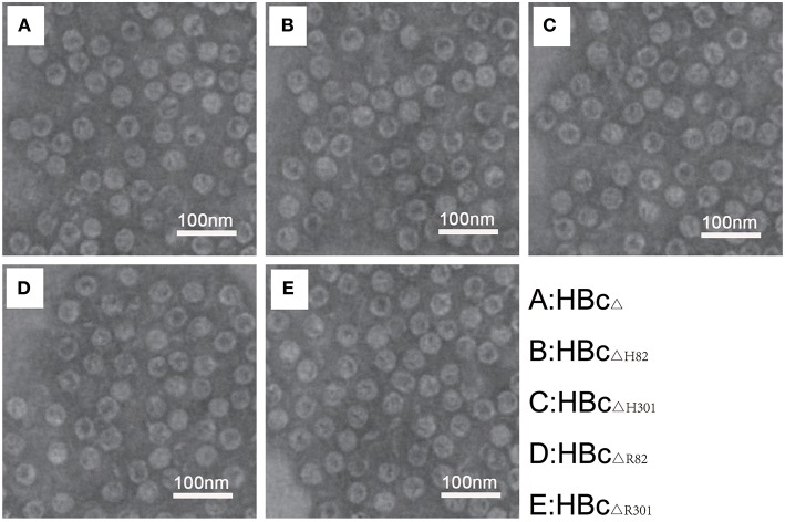 Electron microscopic characterization of VLPs. Transmission electron microphotographs of the chimeric HBc particles [HBc Δ (A) , HBc ΔH82 (B) , HBc ΔH301 (C) , HBc ΔR82 (D) , and HBc ΔR301 (E) ] showing regular morphology of the VLPs in each preparation. Images were generated using 1% phosphotungstic acid as a negative stain. Magnification 120, 000×. Scale bar, 100 nm.