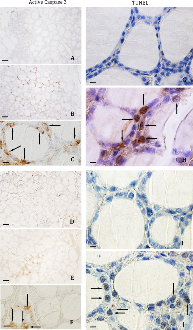 Immunohistochemical reaction for active caspase-3 and TUNEL assay in thyroid follicular cells. Follicular active caspase 3-positive cells in WT female ( A ) and male animals ( D ), and IRS2-KO female ( B–C arrows) and male ( E – F arrows) mice. TUNEL-positive follicular cells were less numerous in the WT female ( G ) and male ( I ) mice than in the IRS2-KO female ( H , arrows) and male ( J , arrows) animals. Scale bars: A, B, D, E = 60 µm; C, F = 20 µm; G–J = 12 µm.