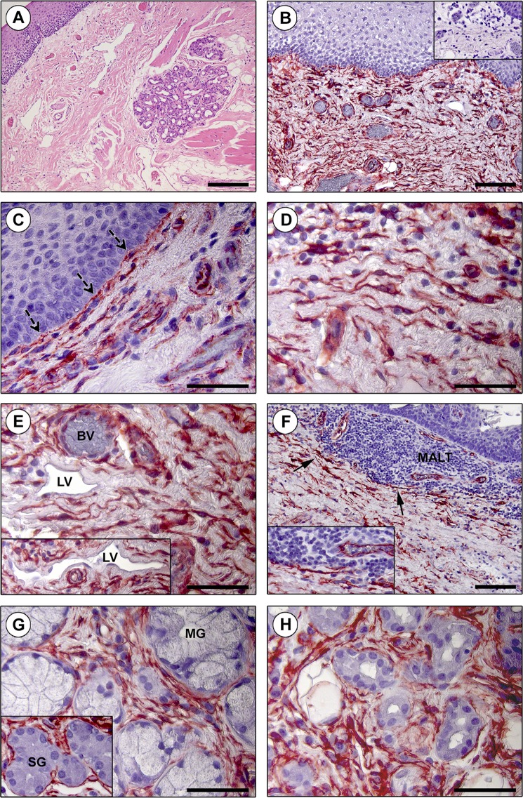 Immunohistochemical localization of telocytes (TCs)/CD34+ stromal cells in the human tongue lamina propria. ( A ) Hematoxylin and eosin staining testifying the normal appearance of the lamina propria connective tissue. ( B – H ) CD34 immunohistochemistry with hematoxylin counterstain. ( B ) An extensive CD34+ cell meshwork is finely distributed throughout the tongue lamina propria. Inset: negative control. ( C–E ) CD34+ interstitial cells exhibit the typical TC morphology ( i.e . spindle-shaped cells with a small nucleated body and very long and thin moniliform/varicose telopodes). ( C ) Note the almost continuous TC layer along the basement membrane beneath the oral mucosa epithelium (dashed arrows). ( D ) TCs are in close relationship with histiocytes/mononuclear cells. ( E ) CD34+ TCs are particularly concentrated around blood vessels (BV) and lymphatic vessels (LV) (inset). CD34 immunoreactivity is detected also in blood vascular endothelium, but not in lymphatic endothelium. ( F ) TCs are arranged to delimit externally the mucosa-associated lymphoid tissue (MALT) aggregates (arrows; higher magnification in the inset). ( G ) CD34+ TCs closely surround the secretory units of mucous glands (MG) and serous glands (SG) (inset). ( H ) TCs are also distributed around salivary gland excretory ducts. Scale bar: 200 µm ( A ), 100 µm ( B,F ), 50 µm ( C–E,G,H ).