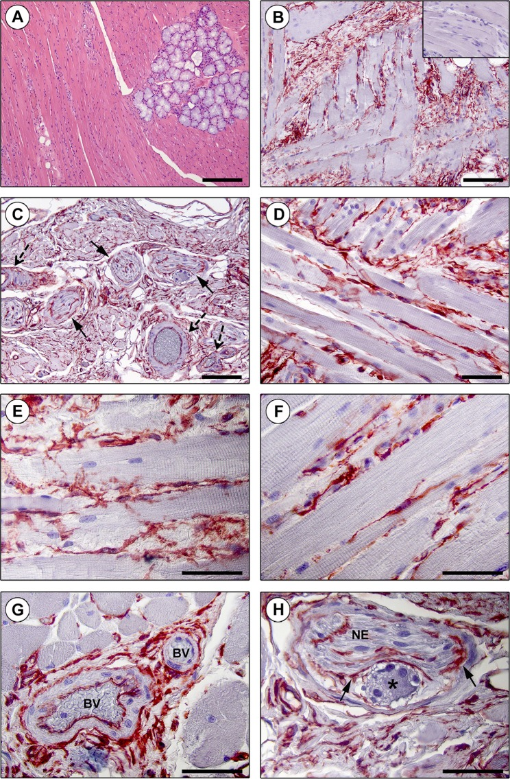Immunohistochemical localization of telocytes (TCs)/CD34+ stromal cells in the interstitium of the human tongue striated muscle. ( A ) Hematoxylin and eosin staining demonstrating the normal appearance of the tongue muscle. ( B–H ) CD34 immunohistochemistry with hematoxylin counterstain. ( B,C ) A diffuse CD34+ reticular network is evident in the perimysium encasing skeletal muscle bundles ( B ) and around intramuscular vessels (dashed arrows) and nerves (arrows) ( C ). Inset: negative control. ( D–F ) The endomysium is populated by a dense meshwork of CD34+ TCs projecting long and moniliform telopodes in close relationship with skeletal muscle fibers. ( G ) CD34+ TCs intimately encircle intramuscular arterioles (BV, blood vessels). ( H ) TCs form an outer sheath (arrows) for intramuscular nerves (NE) and ganglia (asterisk). Scale bar: 200 µm ( A ), 100 µm ( B,C ), 50 µm ( D–H ).