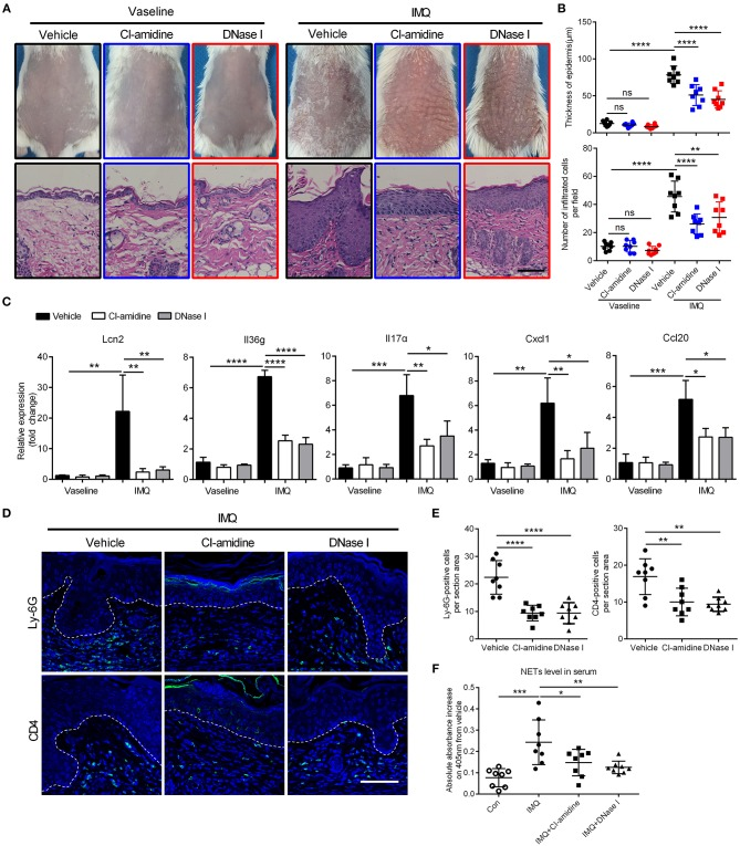 Targeting NETs attenuates psoriasis-like inflammation  in vivo (A)  The phenotype and H  E staining of back skin from CI-amidine, DNase I, or PBS-administrated mice with IMQ or Vaseline treatment, three mice per group. Scale bars, 100 μm. ( B)  Quantification of epidermal thickening and infiltrated immunocytes according to H  E staining in a One-way ANOVA,  n  = 8 per group (mean±SD).  (C)  QRT-PCR analyses of psoriasis-related cytokines and molecules from skin samples of mice described as in A One-way ANOVA,  n  = 8 per group (mean±SD).  (D, E)  Representative immunofluorescence and quantification of skin sections from CI-amidine, DNase I, or PBS-treated IMQ mice for neutrophil marker Ly-6G and T cell marker CD4. Scale bars, 100 μm. One-way ANOVA,  n  = 8 per group (mean±SD).  (F)  The MPO-DNA complex quantification indicating NETs level in serum from psoriasis patients and normal controls.  n  = 8, each data point represents an individual. One-way ANOVA. * P