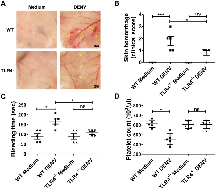 TLR4 is involved in DENV-induced prolongation of bleeding time and hemorrhage in mice. A hemorrhagic mouse model was performed with C57BL/6J mice (WT) and TLR4 -/- C57BL/6J background mice as described in the Methods. (A) Mouse skin samples were removed to observe local hemorrhage on day 3 after DENV injection. The number of mice with hemorrhage divided by the total number of mice inoculated in each group is indicated. Yellow arrows indicate local skin hemorrhage. (B) The clinical score of hemorrhage was quantified and determined as digital hemorrhage severity. (C) The tail bleeding time and (D) platelet counts were also determined on day 3 before sacrifice. *P