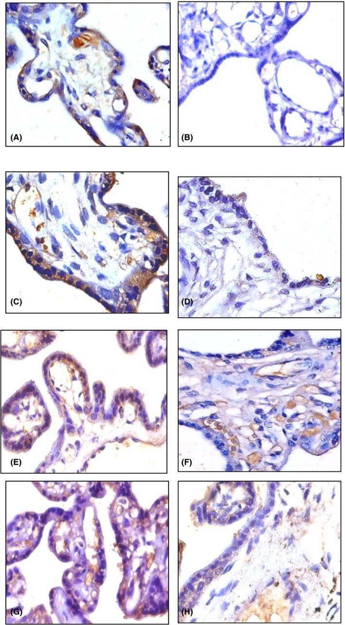 Immunohistochemical expression of anti‐inflammatory cytokines (Magnification: 400×). IL‐4: A, C control placenta (35 wks, 38 wks) showing moderate cytoplasmic expression in ST; B, D, preeclamptic placenta (35 wks, 38 wks) showing mild cytoplasmic expression in ST. <t>IL‐10:</t> E, G, control placenta (35 wks, 38 wks) showing moderate cytoplasmic expression in ST; F, H preeclamptic placenta (32 wks, 38 wks) showing mild cytoplasmic expression in ST