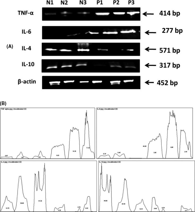 Reverse transcriptase PCR analysis of the preeclamptic (P) and normal (N) placental tissues on representative samples. A, mRNA transcripts of all proteins where N1, P1 represents Group I samples and N2, N3, P2, P3 represents Group II samples. β‐actin was used as control. B, Quantification of the mRNA transcripts of IL‐6, TNF‐α, IL‐4, IL‐10 where the values in the curve represents the percentage of the samples