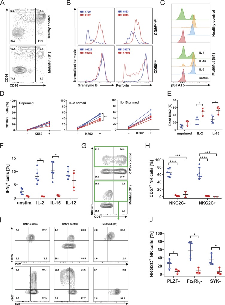 """NK cells retain IL-2/IL-15 responsiveness and effector function, but an adaptive """"memory-like"""" subset is lacking. (A) Flow cytometry plot of CD16 and CD56 expression in CD3 − CD19 − lymphocytes (patient B1), representative of four independent experiments. (B) Histograms of granzyme B and perforin content in CD56 bright versus CD56 dim NK cells. Healthy control in blue, patient B1 in red. Experiment displayed representative of three independent experiments. (C) STAT5 phosphorylation in NK cells (B1) in response to IL-2, IL-7, and IL-15 stimulation. (D) CD107a expression (degranulation) in healthy control and patient B1 NK cells co-cultured with K562 cells after 12 h of priming with IL-2 or IL-15 or left unprimed. (E) Percentage of 7-AAD–positive, i.e., dead, K562 cells as a measure of cytotoxicity when co-cultured with healthy control (blue circles) PBMCs or patient B1 (red squares) PBMCs. (F) IFNγ production in response to the indicated stimuli in control NK cells (blue circles) or patient B1 NK cells (red squares). (G) Expression of NKG2C and CD57 on NK cells of CMV + control and patient B1. (H) Summary graph displaying the percentage of CD57 + positivity within the NKG2C + and NKG2C − NK cell subsets (mean ± SD) in patient A1 (red triangles) and B1 (red squares). Data representative of six independent experiments. (I) FACS plots of FcεRIγ, PLZF, and SYK expression in CMV − and CMV + healthy controls and well as patient B1, gated on NKG2C-expressing NK cells. (J) Summary graphs showing the percentage of NKG2C + NK cells from patient A1 (red triangles) and B1 (red squares) down-regulating the indicated proteins. ****, P"""