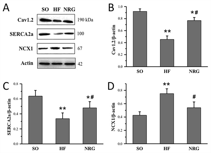 Quantitative analysis of calcium handling proteins expressions. (A) Representative expression of Cav1.2, SERCA2a, and NCX1, β-actin as loading controls. (B) Comparison of Cav1.2 protein expression (n = 3 rats). (C) Comparison of SERCA2a protein expression (n = 4 rats). (D) Comparison of NCX1 protein expression (n = 4 rats). * P