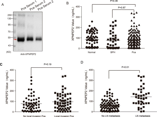 Serum <t>XPNPEP2</t> levels in normal and prostate cancer patients. Western blot assay clarified secreted XPNPEP2 in serums of Pca patients ( A ). The ELISA assay detected serum XPNPEP2 levels in normal, BPH and Pca patients using a human XPNPEP2 ELISA pair set, the scatter plots were showed ( B ). ( C ) Plots illustrated the serum XPNPEP2 levels in Pca patients with local invasion versus without local invasion. ( D ) Plots showing the serum XPNPEP2 levels in Pca patients with LN metastasis versus without LN metastasis.