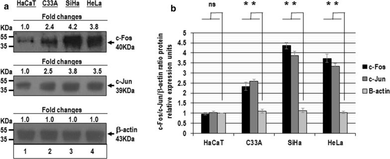 Analysis of c-Fos and c-Jun protein expression in cervical cancer cells. Total cellular proteins were obtained from 1 × 10 5 HaCaT (lane 1), C-33A (lane 2), SiHa (lane 3) and HeLa cells (lane 4) per well in a six-well plate containing DMEM at 37 °C with 10% FBS in 5% CO 2 . The proteins were separated in 12% SDS-PAGE and were transferred to nitrocellulose membranes, which were incubated with each antibody. a The amount of similar proteins analyzed in the immunoblots. The anti-beta-actin antibody was included as control. b The immunoblot bands digitalized and analyzed by densitometer. The data were analyzed by c-Fos/c-Jun/beta-actin fold change in relative expression units (mean ± SE), not statistically significant (ns) and P values