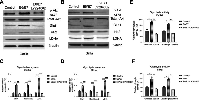 5-Fu sensitivity of cervical cancer cells is mediated by the E6/E7-promoted glycolysis. ( A ) CaSki and ( B ) SiHa cells were transfected with control or E6/E7 overexpression vector for 48 hrs, cells were treated with or without Akt inhibitor for 16 hrs. Western blot was performed to check the phosphorylation of Akt and Glut-1, HK2, and LDHA protein expressions. ( C ) CaSki and ( D ) SiHa cells were treated with the same protocol and the mRNAs of Glut-1, HK2, and LDHA were measured by qRT-PCR. ( E ) CaSki and ( F ) SiHa cells were treated with the same protocol and the glucose uptake and lactate production were detected. * p