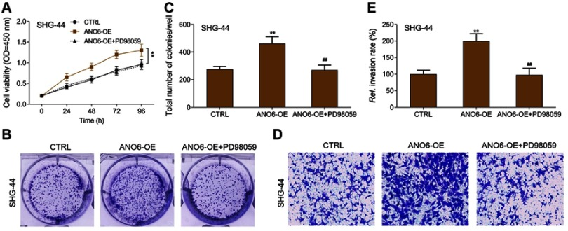 ERK inhibitor inhibited the proliferation and invasion of ANO6 overexpression cells. After SHG-44 cells transfection with ANO6 plasmid was treated with PD98059, ( A ) the cell viability was detected by MTT assay; ( B and C ) the ability of cell proliferation was detected by colony formation; ( D and E ) the ability of invasion was detected by transwell assay. Data are presented as the mean ± standard deviation. ** p