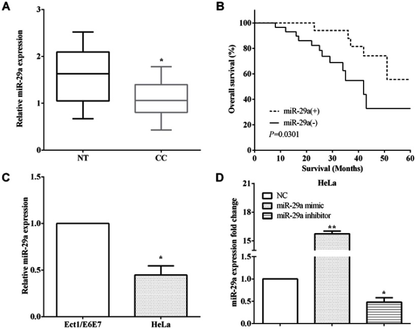 Low expression of miR-29a predicted poor prognosis of cervical cancer. ( A ) miR-29a was downregulated in cervical cancer tissues versus corresponding paracancerous tissues. ( B ) Kaplan–Meier method elucidated low expression of miR-29a predicted poor overall survival. ( C ) The expression of miR-29a was downregulation in HeLa cells than Ect1/E6E7 cells. ( D ) The transfection efficiency of transfecting miR-29a mimic and miR-29a inhibitor in HeLa cells. * P