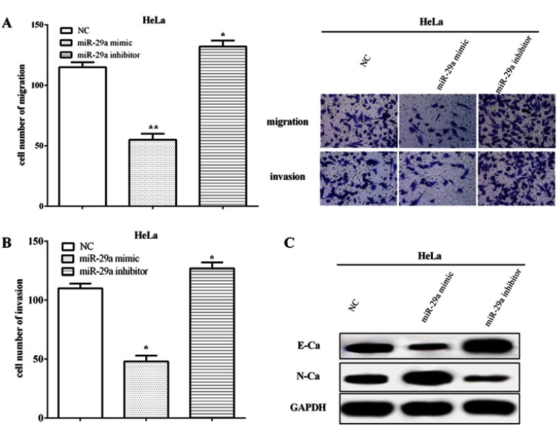 miR-29a impaired cell metastasis and EMT of HeLa cells. ( A ) The miR-29a mimic inhibited the migratory capacity, whereas it was inhibited by the miR-29a inhibitor. ( B ) miR-29a regulated cell invasion in HeLa cells. ( C ) The miR-29a mimic suppressed the expression of E-cadherin while improved the expression of N-cadherin. Meanwhile, the miR-29a inhibitor enhanced the expression of E-cadherin whereas suppressed the expression of N-cadherin. *Compared with NC, P