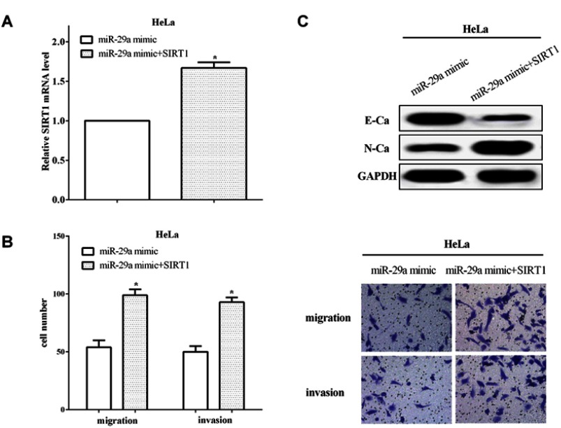 SIRT1 reversed partial functions of miR-29a. ( A ) The transfection efficiency was calculated of re-transfecting pcDNA3.1-SIRT1 plasmid in miR-29a overexpressed HeLa cells. ( B ) The migratory and invasive abilities were increased when re-transfected SIRT1 in miR-29a overexpressed cells. ( C ) SIRT1 could reverse partial functions of miR-29a on the EMT capacity in HeLa cells. * P