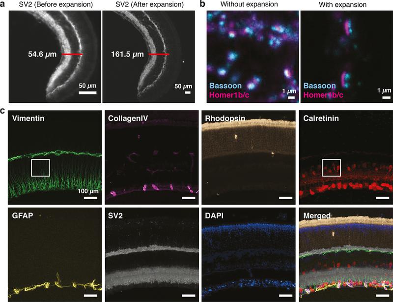 Multiplexed super-resolution imaging using Expansion-SABER. (a) 40 μm mouse retina cryosections were stained for SV2 using DNA-conjugated SV2 antibodies, followed by SABER concatemer hybridization. Before and after images were respectively acquired before hydrogel formation, or after hydrogel formation and expansion (~3-fold), using the original expansion protocol 31 , 39 . (b) Images of pre- and post-synaptic sites of neuronal synapses in fixed primary mouse hippocampal neuron culture samples with and without expansion (different fields of view are shown). The pre-synaptic sites were labeled with anti-Bassoon antibodies and the post-synaptic sites were labeled with anti-Homer1 antibodies. DNA-conjugated secondary antibodies were used to target Bassoon and Homer1 primary antibodies, followed by SABER concatemers application. (c) ExM imaging of 6 protein targets in the originally 40 μm-thick mouse retina section (expanded ~3-folds) with Exchange-SABER. 2 exchange rounds with Atto488-, Atto565- and Alexa647- conjugated imager strands were performed to visualize all 6 targets in the expanded samples. DAPI was imaged in both rounds to serve as a registration marker. The images are maximum projections of z-stacks, drift-corrected using DAPI channels, and pseudo-colored for presentation. A zoom-in view of the boxed region is available in Supplementary Fig. 9b .