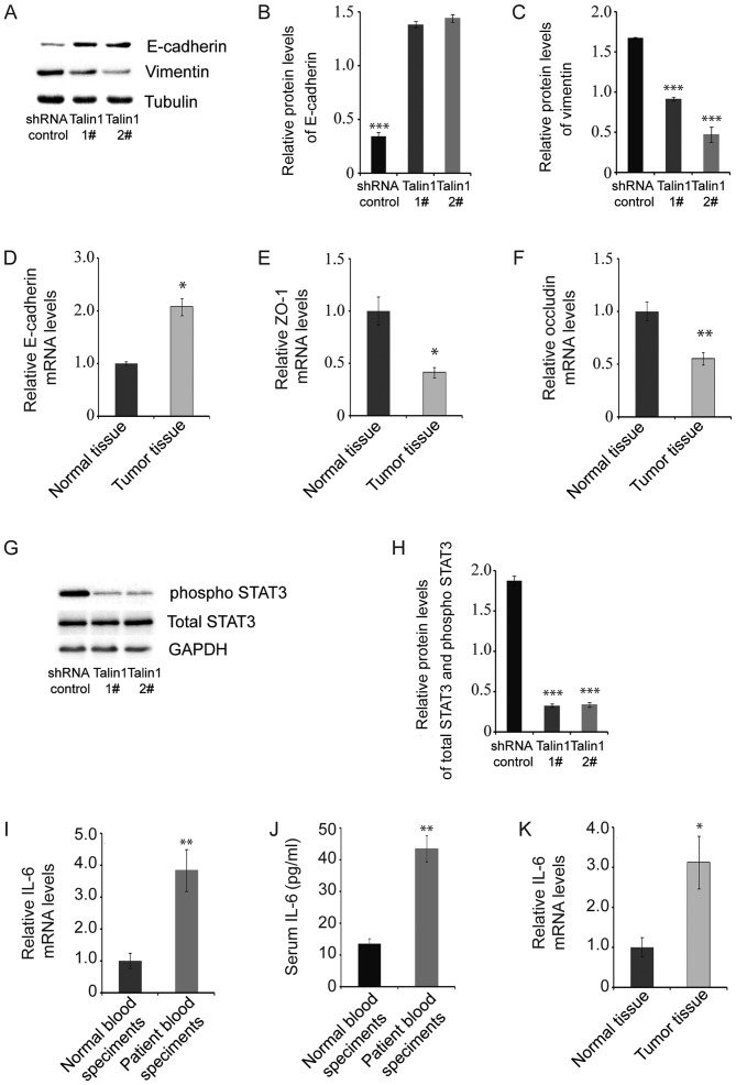 Talin1 knockdown affects the expression of proteins associated with the EMT signaling pathway in HCT116 cells. (A) E-cadherin and vimentin protein levels were measured by western blotting in talin1-knockdown HCT116 cell lines and HCT116 cells transfected with the shRNA control. (B) E-cadherin protein levels in talin1-knockdown HCT116 cell lines and HCT116 cells transfected with the shRNA control (n=3). (C) Vimentin protein levels in in talin1-knockdown HCT116 cell lines and HCT116 cells transfected with the shRNA control (n=3). (D) E-cadherin mRNA levels in tumor and normal tissues. (E) ZO-1 mRNA levels in tumor and normal tissues. (F) Occludin mRNA levels in tumor and normal tissues. (G) pSTAT3 and total STAT3 protein levels measured by western blotting. (H) pSTAT3 and total STAT3 protein levels in talin1-knockdown HCT116 cell lines and HCT116 cells transfected with the shRNA control (n=3). (I) IL-6 mRNA levels in blood samples from patients and healthy controls. (J) Serum IL-6 concentrations in blood samples from patients and healthy controls. (K) IL-6 mRNA levels in tumor and adjacent normal tissues. Data are presented as mean ± SEM. *P