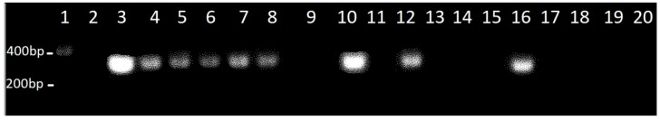 Open reading frame (ORF) A104R was successfully integrated in transfected Vero and COS-1 cells. ORF A104R was amplified by PCR (287 bp) from the genome of Vero-pA104R clones, cultured under antibiotic selective pressure (G418). Line 1: Molecular marker (NZYDNA Ladder III); Line 2: Vero wild type (wt, negative control); Line 3: pIRESneo A104R (positive control); Lines 4–6: three distinct Vero-pA104R clones, transfected with linearized plasmid and Lipofectamine 2000; Lines 7,8: two distinct Vero-pA104R clones, transfected with circular plasmid and Lipofectamine 2000; Line 9: COS-1 wt cells (negative control); Line 10: COS-1 cells transfected by Lipofectamine 2000 with the A104R construct; Line 11: Flp-In wt cells; Line 12: Flp-In cells transformed with the A104R construct; Lines 13–15: COS-1 cells transfected with Lipofectamine LTX (16 weeks); Line 16: FRT/A104R plasmid (positive control); Lines 17–20: Flp-In clones sustaining the selective pressure.