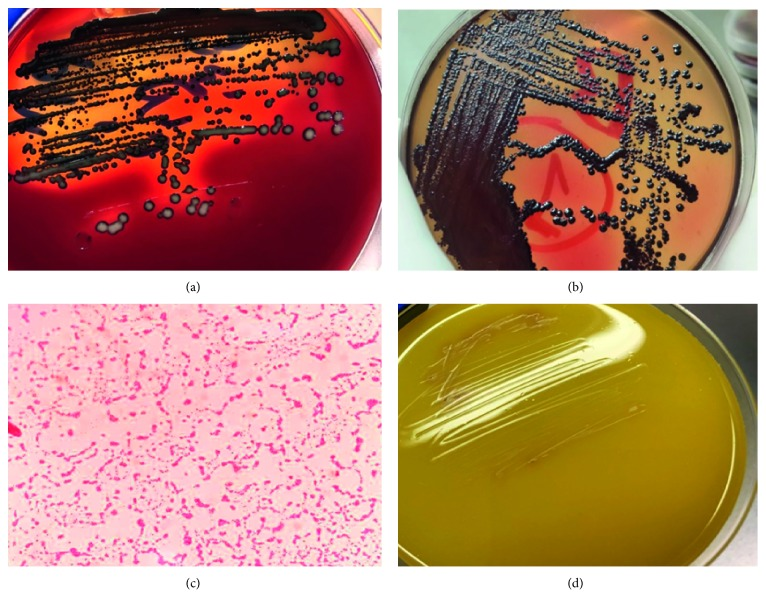 Pure isolated bacterial colonies of P. gingivalis after 7 (a) and 10 (b) days on Columbia agar appearing as round, smooth, shiny, and convex black colonies. (c) Gram-negative short rods of P. gingivalis and (d) agar formed media cultured from the tube with the MIC of curcumin showing no P. gingivalis growth.