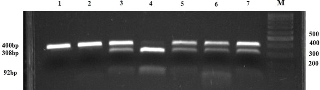PCR-RFLP restriction products of the GSTA1 gene. Lanes 1 and 2 represent PCR products of GSTA1 *CC genotype (400 bp bands); lanes 3, 5, 6, and 7 represent PCR-RFLP restriction products of GSTA1 *CT genotype (400 bp, 308 bp, 92 bp bands); Lane 4 comprises RFLP-PCR restriction products of GSTA1 *TT genotype (308 bp, 92 bp bands); M, DNA marker; N, negative control without a DNA content.