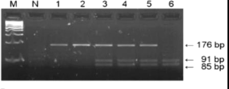 PCR–RFLP restriction products of the GSTP1 gene. Lanes 1 and 2 represent products of wild-type (Ile/Ile) genotype, lanes 3, 4, and 5 represent heterozygous (Ile/Val) while lane 6 indicates homozygous (Val/Val) genotype; M, DNA Q2 marker; N, negative control.