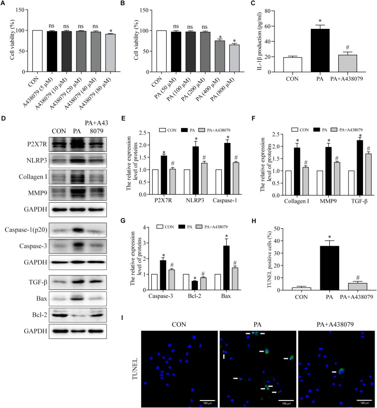 The P2X7R inhibitor suppressed PA-induced inflammation, fibrosis and apoptosis in cardiomyocytes. (A) Cell viability was assessed by the CCK8 assay. H9c2 myocytes were incubated in a medium with A438079 at 0–80 μM for 12 h, and cells without A438079 treatment served as the control. (B) H9c2 myocytes were incubated in a medium with PA at 0–800 μM for 24 h, and cells without PA treatment served as the control. (C) Concentrations of IL-1β in cell culture supernatants were detected by ELISA. (D) Representative Western blot analysis of P2X7R, NLRP3 inflammasome, collagen I, MMP9, TGF-β, caspase-1, caspase-3, Bax, and <t>Bcl-2.</t> (E) The protein semiquantification is shown for P2X7R, NLRP3 and caspase-1. (F) The protein semiquantification is shown for collagen I, MMP9 and TGF-β. (G) The protein semiquantification is shown for caspase-3, Bax, and Bcl-2. (H) The percentages of TUNEL-positive cells are shown. (I) Representative images of TUNEL stained H9c2 myocytes. CON, H9c2 myocytes without any treatment; PA, H9c2 myocytes treated with 200 μM PA for 24 h; PA + A438079, H9c2 myocytes pretreated with A438079 for 12 h, and then treated with 200 μM PA for 24 h. ∗ p