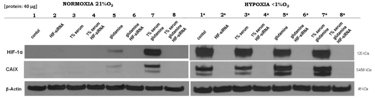 Altered HIF1α-dependent effects of normoxia and hypoxia under different culture conditions. Western blot analysis was performed 24 h after the application of different treatments for HIF1α and carbonic anhydrase (CAIX), while β-actin served as a control. (Lane 1) Medium control; (lane 2) siRNA against HIF1α; (lane 3) 1% fetal bovine serum; (lane 4) 1% fetal bovine serum and siRNA against HIF1α; (lane 5) 5 mM glutamine; (lane 6) 5 mM glutamine and siRNA against HIF1α; (lane 7) 1% fetal bovine serum and 5 mM glutamine; and, (lane 8) 1% fetal bovine serum, 5 mM glutamine and siRNA against HIF1α under <t>normoxic</t> or hypoxic (*) conditions in MDA-MB-231 cells. The experiments were performed in <t>RPMI</t> 1640 in the presence of 11.1 mM glucose, but without glutamine. Deep sequencing analysis was performed for each of the corresponding RNA samples (lanes 7, 8, 7*, and 8*) from four independent experiments (Please see Supplemental Figure S3 and the results from the densitometric evaluation of the Western blots of four independent experiments).