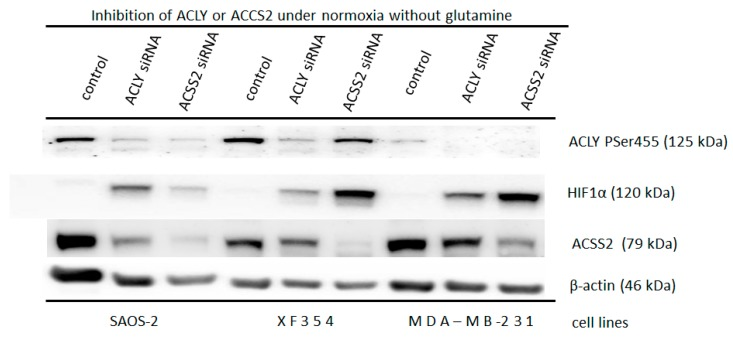 Glutamine independent induction of normoxic HIF1α via down regulation of ACLY or ACSS2. Application of 20 nM siRNA against ATP citrate lyase (ACLY) or the cytosolic form of the acetyl-CoA synthetase (ACSS2) in Saos-2, XF354 and MDA-MB-231 cells in RPMI 1640 medium without glutamine under normoxic conditions for 48 h. This was followed by Western blot analysis of HIF1α, ACLY (Ser 455), and ACSS2 and β-actin as a loading control. Data from three independent experiments (Please see Supplemental Figure S9a–c and the results from the densitometric evaluation of the Western blots).