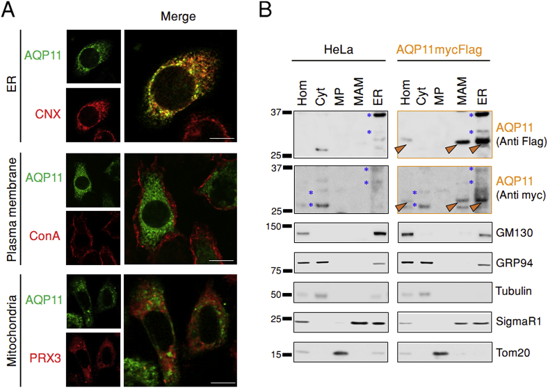 AQP11 resides in the ER. A. HeLa transfectants expressing HaloAQP11 were co-stained with fluorescent Halo ligands, and with antibodies against calnexin (CNX) or peroxiredoxin 3 (PRX3), to decorate AQP11, the ER and mitochondria, respectively. To label glycoproteins on the plasma membrane, cells were stained with concanavalin A-FITC (ConA) in absence of cell permeabilization, and then fixed (middle panels). Scale bar = 10 μm. B. HeLa cells expressing AQP11mycFlag were fractionated as previously described [ 22 , 23 ]. Aliquots were resolved electrophoretically and stripes of the blots decorated with the indicated antibodies. Hom, total post-nuclear homogenates. Cyt, cytosol. MP, pure mitochondrial fraction. MAM, mitochondria-associated membranes. ER, endoplasmic reticulum.