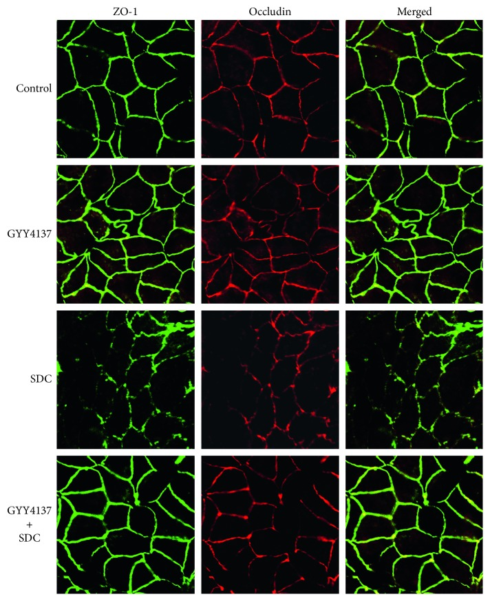 The effects of GYY4137 and SDC on the localization of TJs in monolayers. ZO-1 and Occludin were stained by immunofluorescence. The altered localization of TJs induced by SDC was ameliorated by GYY4137.