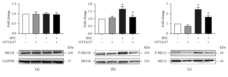 The effects of GYY4137 on the status of P-MLCK-P-MLC2 signaling pathway in Caco-2 monolayers with short-term SDC treatment. Caco-2 monolayers were treated as described in Figure 3 . (a–c) GYY4137 inhibited SDC-induced increased phosphorylation of MLCK and MLC2. Results were expressed as mean ± SEM ( n = 3). ∗ P