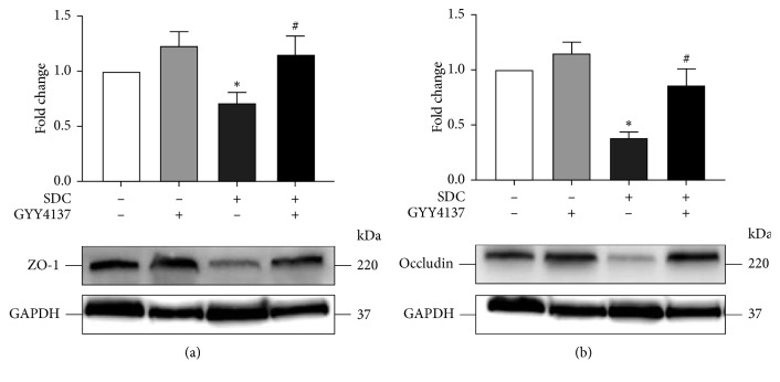 The effects of GYY4137 on the expression level of TJs of mice with the gavage of SDC. GYY4137 significantly inhibited the decreased expression of ZO-1 and Occludin in the proximal colon of mice with the gavage of SDC. All experiments were performed using 6 mice per experimental group and repeated at least three times. Results were expressed as mean ± SEM ( n = 6). ∗ P