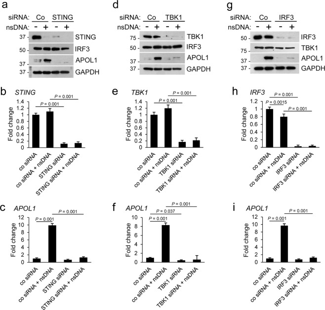 Knockdown of STING, TBK1, or IRF3 inhibits nsDNA-mediated APOL1 expression in human immortalized AB8/13 podocytes. AB8/13 podocytes were transfected with a non-targeting control siRNA (Co) or siRNA pool targeting STING ( a – c ), TBK1 ( d – f ), or IRF3 ( g - i ) for 48 h, and subsequently transfected with 1 μg ml −1 nsDNA for 18 h. Expression of indicated proteins ( a , d , g ) was analyzed by immunoblotting. Protein size markers (kDa) are shown. The blot images in ( a ) were obtained from different gels. One blot was probed for IRF3 and re-probed for GAPDH. Blot images in ( d ) were obtained from different gels. One blot was probed with TBK1 and re-probed with GAPDH, while two other blots were probed for APOL1 and TBK1. The blot images in ( g ) were obtained from different gels. The blot probed for TBK1 was re-probed for GAPDH. Two other blots were probed individually for IRF3 and APOL1. Full images of the blots are shown in Supplementary Fig. S3 . Expression of STING ( b ), TBK1 ( e ), IRF3 ( h ), and APOL1 ( c , f , i ) mRNA was analyzed by qRT-PCR and normalized to GAPDH mRNA levels. Data are expressed as means ± SEM from three biological replicates (one-way ANOVA with post-hoc Tukey test).