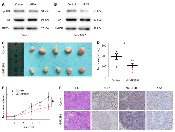 Insulin-like growth factor 2 mRNA-binding protein 1 enhances pancreatic cancer cell proliferation via the AKT signaling pathway. A and B: Western blot analysis of AKT and p-AKT (Ser473) expression in the indicated cells and their corresponding control cells; C: Panc-1 sh-insulin-like growth factor 2 mRNA-binding protein 1 (IGF2BP1) or control cells were subcutaneously injected into BALB/c nude mice for xenograft assays; D-E: The average weights and tumor growth curves of each group; F: Immunohistochemistry staining of the xenograft tumors. Scale bar = 25 μm (red line). P