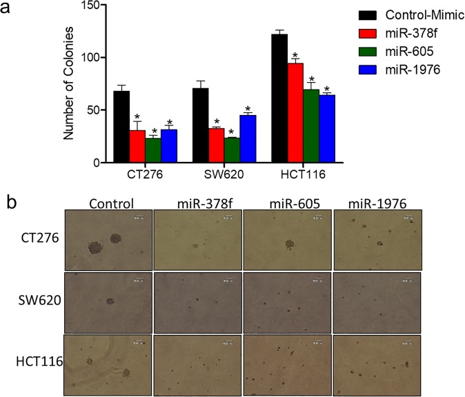Restored expression of downregulated miRNAs inhibits anchorage independent growth of CRC cell lines. CRC cell lines (CT26, SW620, HCT116) were transfected with miR-378f, miR-605, miR-1976, or negative control (NC) mimics and plated into soft agar assays. Two weeks post plating, number of colonies were counted and presented as average number of colonies in 5 fields + standard deviation ( a ) with representative images of each below the graphs ( b ). Statistics generated using student t-test; N = 3, *p