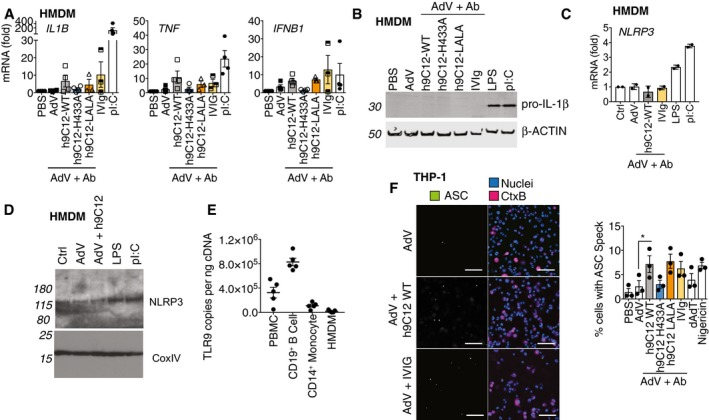 TRIM21 is involved in inflammasome activation rather than enhancing pro‐IL‐1β expression HMDM were stimulated with AdV (50,000 pp/cell) and antibody (h9C12; 20 μg/ml, IVIg: 20 mg/ml) or 10 μg/ml pI:C for 3 h and gene expression was measured by qPCR ( n = 4 mean ± s.e.m). HMDM were stimulated as in (A), or with 10 ng/ml LPS for 6 h and pro‐IL‐1β levels in the cytosol measured by Western blot. Blot is representative of three independent donors. HMDM were stimulated as in (A), or with 10 ng/ml LPS for 3 h and NLRP3 mRNA expression measured by qPCR. Data show average ± s.d. of two independent donors. HMDM were stimulated as in (B) and NLRP3 levels in the cytosol measured by Western blot. Blot is representative of two independent donors. TLR9 mRNA levels from PBMCs, CD19 +ve B cells, CD14 +ve monocytes or HMDM derived from CD14 +ve monocytes were assessed by qPCR, and copy number was determined relative to actin copy number ( n = 5 mean ± s.e.m). THP‐1s expressing ASC‐GFP were stimulated for 6 h with virus and antibody or 200 ng/well HT‐DNA or 10 μM Nigericin, in the presence of the pan‐caspase inhibitor zVAD‐fmk. A representative image (scale bar 100 μm) and quantification of number of cells with ASC specks from three independent experiments (mean ± s.e.m, * P ≤ 0.05, paired, two‐tailed t‐ test) are shown. Source data are available online for this figure.