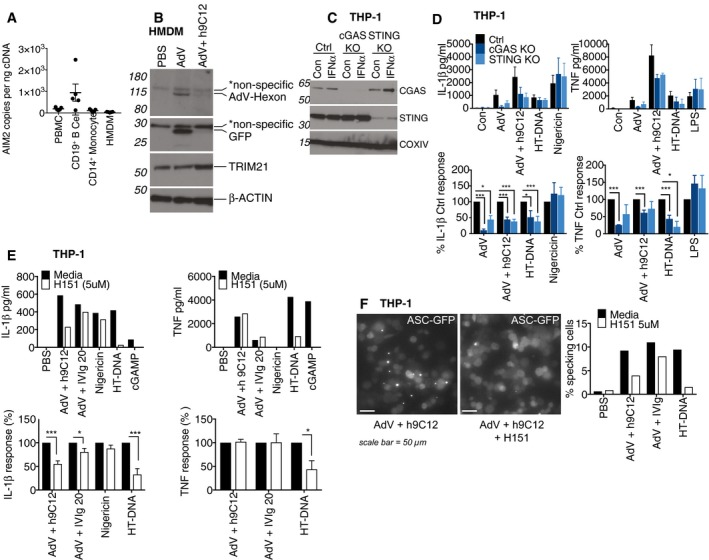Trim21 exposes AdV genomes to cGAS and STING to trigger NLRP3‐dependent inflammasome activation AIM2 mRNA levels from PBMCs, CD19 +ve B cells, CD14 +ve monocytes or HMDM derived from CD14 +ve monocytes were assessed by qPCR, and copy number was determined relative to actin copy number ( n = 5 mean ± s.e.m). HMDM were stimulated with AdV (50,000 pp/cell) and 20 μg/ml h9C12 for 1 h, washed 2× with SFM and then whole cell lysates harvested after a further 5 h. Viral hexon and transgene (GFP) expression in the cytosol was assessed by Western blot. Data are representative of two independent experiments. THP‐1s expressing either a control guide RNA or targeting cGAS and STING were generated and stimulated with 1,000 U/ml IFN‐α for 4 h and protein levels assessed by Western blot. THP‐1s deficient in cGAS and STING were stimulated with AdV (50,000 pp/cell) and 20 μg/ml h9C12, 200 ng/well HT‐DNA, 10 μM <t>Nigericin</t> or 10 ng/ml LPS for 16 h. Data show combined data (mean ± s.e.m) of three experiments with absolute protein values (upper panel) or as % cytokine output of KO cells relative to Ctrl‐treated cells (lower panel), * P ≤ 0.05, *** P ≤ 0.001 unpaired, two‐tailed t ‐test). WT THP‐1s were treated with 5 μM H151 for 30 min before stimulation as in (D). Data in upper panel are representative of three independent experiments. Data in lower panel show combined data of these three experiments (mean ± s.e.m) showing H151‐treated cells relative to media treated cells (* P ≤ 0.05, *** P ≤ 0.001 unpaired, two‐tailed t ‐test). ASC‐GFP THP‐1s were treated with 5 μM H151 for 30 min before stimulation with AdV‐mCherry (50,000 pp/cell) + 20 μg/ml h9C12 or 20 mg/ml IVIg or 200 ng/ well HT‐DNA for 8 h. A representative image (scale bar 50 μm) and quantification of number of cells with ASC specks from one representative experiment of three are shown. Source data are available online for this figure.