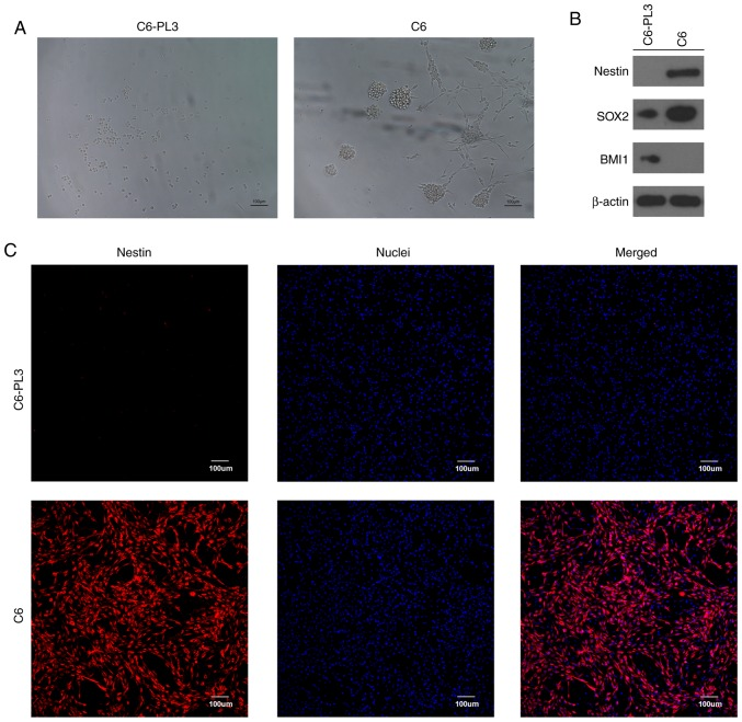 TMZ-resistant rat glioma (C6-PL3) cells do not possess typical properties of cancer stem cells. (A) The ability of C6-PL3 cells and parental rat glioma (C6) cells to form tumor spheres was observed under phase-contrast microscopy. (B) Expression of Nestin, SOX2, BMI1, and β-actin in C6-PL3 and C6 cells was analyzed using western blotting. (C) Expression of nestin in C6-PL3 and C6 cells was analyzed using immunofluorescence. TMZ, temozolomide.