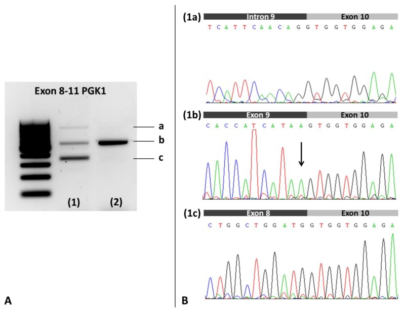 Analysis of the PGK1 patient's blood cDNA. ( A ). Electrophoresis on 1% agarose gel. Lane 1: Index case showing a transcript of normal size (b band), one higher molecular weight cDNA species (a band), and an apparently more abundant transcript of lower molecular weight (c band); Lane 2: Healthy control showing a transcript of normal size (b band). ( B ). Sanger Sequencing of the gel purified amplicons. ( 1a ): Sequence of patient's a band showing the retention of intron 9; ( 1b ): Sequence of the patient's b band displaying the junction of exons 9 and 10, and the variant c.1114G > A (indicated by an arrow). Healthy control revealed the same pattern for b band (not shown). The hemizygous c.1114G > A variant was detected in the patient's sequence of a transcript of normal size (1b); ( 1c ): Sequence of patient's c band showing the skipping of exon 9 in the cDNA.